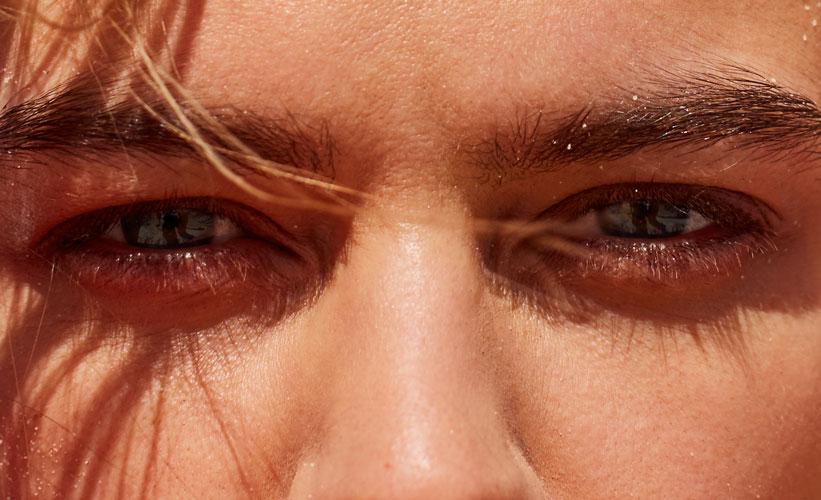 ojos-inflamados